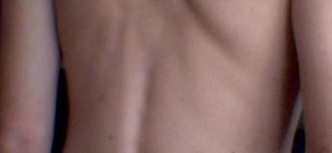 5 enkle strekkøvelser som kan lindre ryggsmertene dine