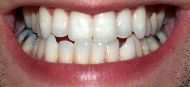 Nyttige tips om tannbleking