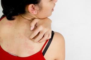 allergi-8-lite